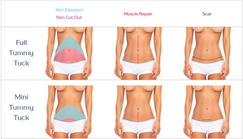 Full vs Mini abdominoplasty