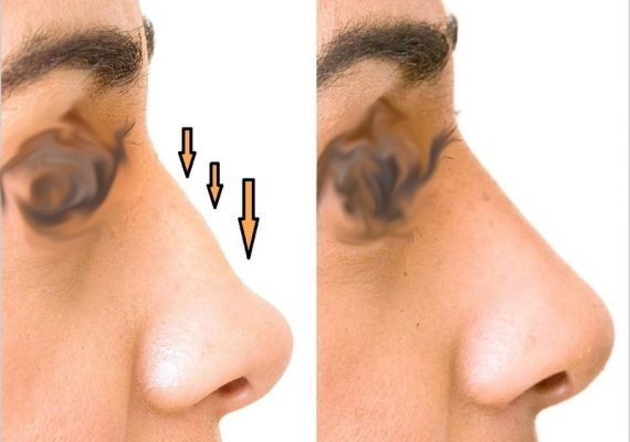 nose reshaping augmentation hyaluronic