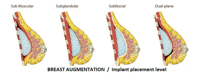Breast augmentation Implant placement level