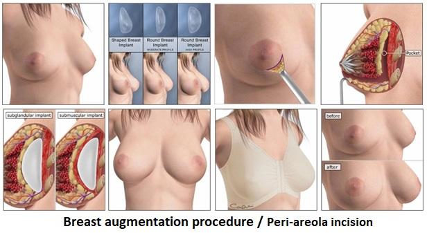 Breast augmentation implant periareolar