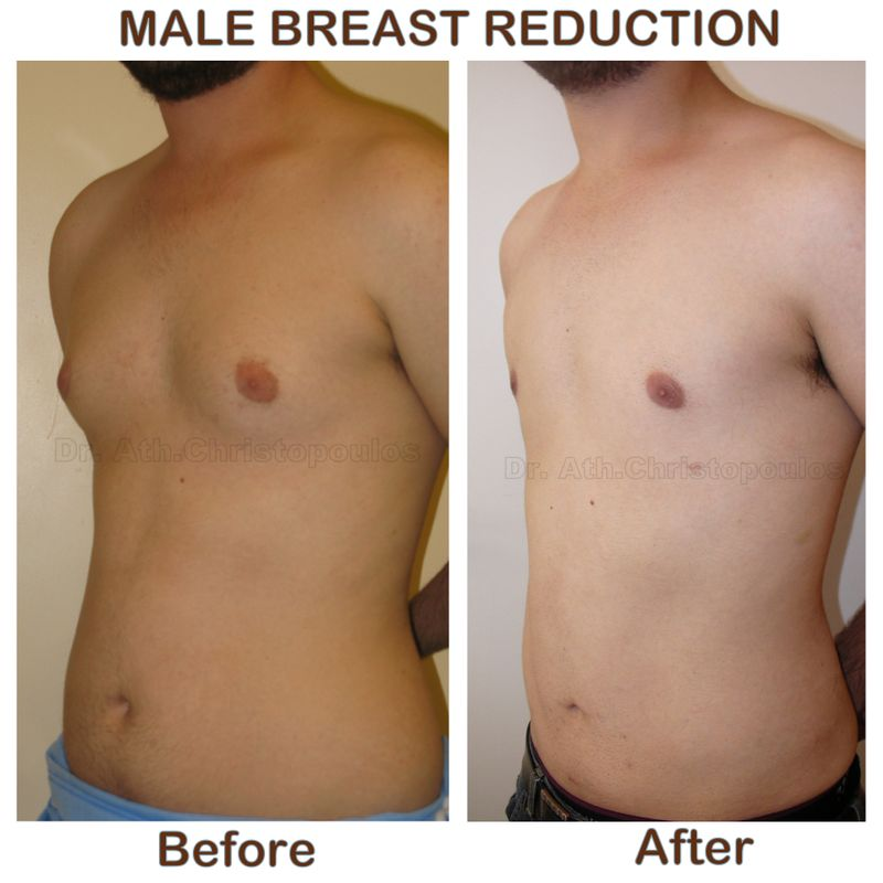 Gynecomastia before after plastic surgeon