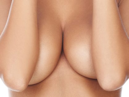 BREAST ASYMMETRY POLAND SYNDROME