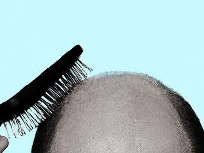 HAIR TRANSPLANTATION