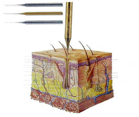 laser Root Hair Removal