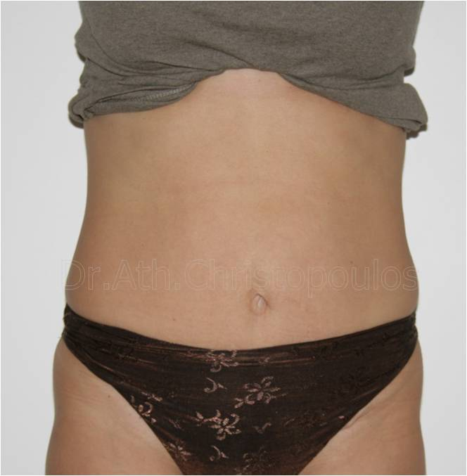 After-Abdominoplasty