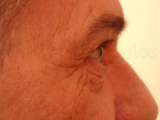 Before-Blepharoplasty