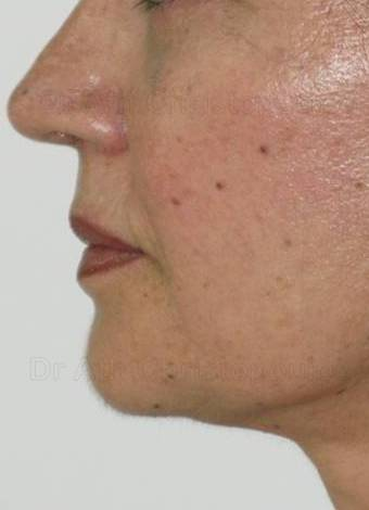 After-Face Lifting