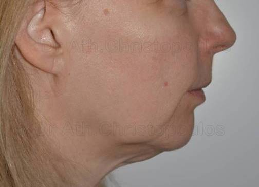 Before-Face Lifting