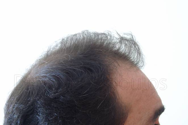 Before-Hair Transplantation