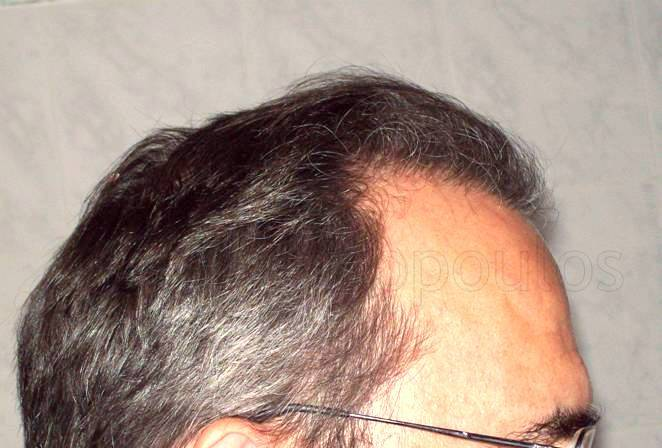 After-Hair Transplantation