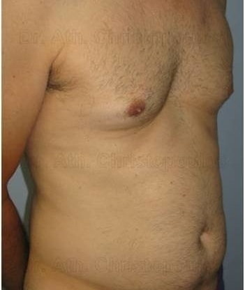 Before-Gynecomastia