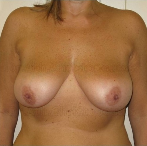 Before-Breast Lift