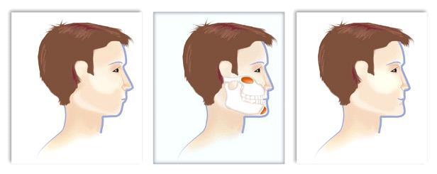 methods of adjusting face shape
