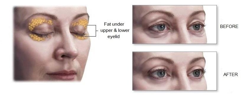 cosmetic eyelid surgery blepharoplasty